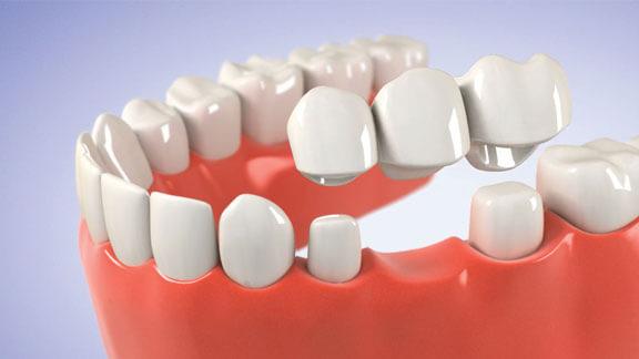 fogyás fogászati problémák miatt)